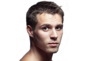 Ist Glatze Rasieren Die Optimale Lösung Bei Haarausfall Direkthaar