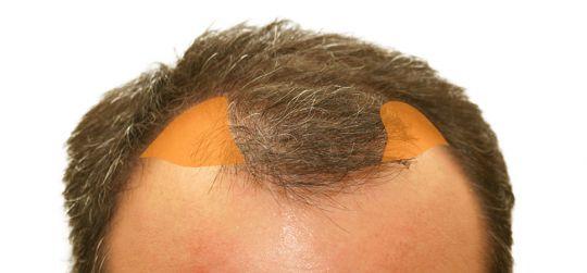 Sonderanfertigung Haarlinie - Farbwahl